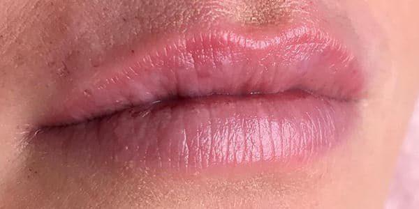 usia-hyaluronpen-lippen-nafoto1
