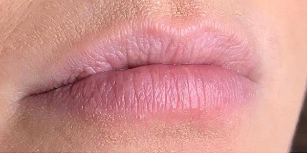 usia-hyaluronpen-lippen-voorfoto1